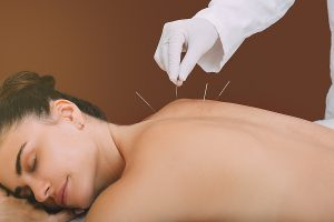 Woman while getting an acupuncture treatment